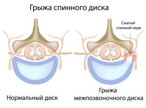 Грыжа межпозвонкового диска